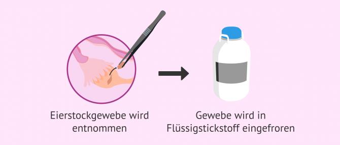 Imagen: Methode zum Einfrieren von Ovargewebe