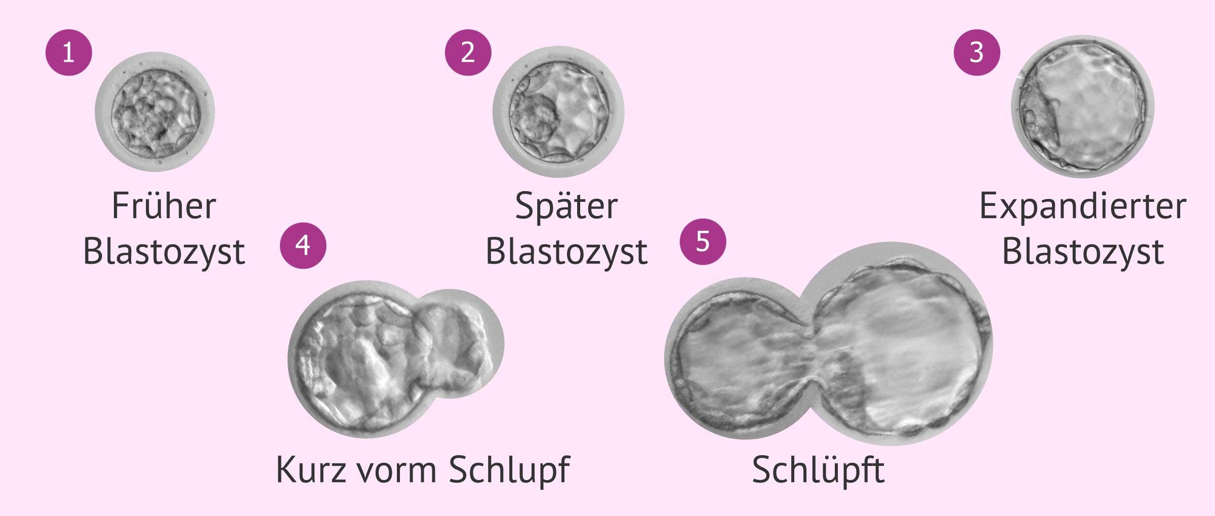 Ausdehnungsgrade der Blastozyste