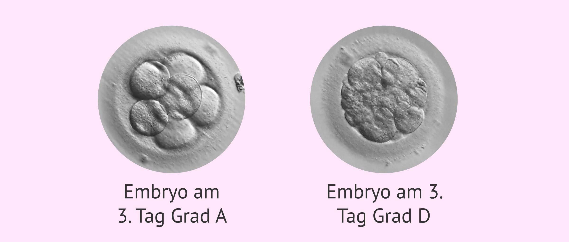 Einteilung der Embryonen am 3. Entwicklungstag
