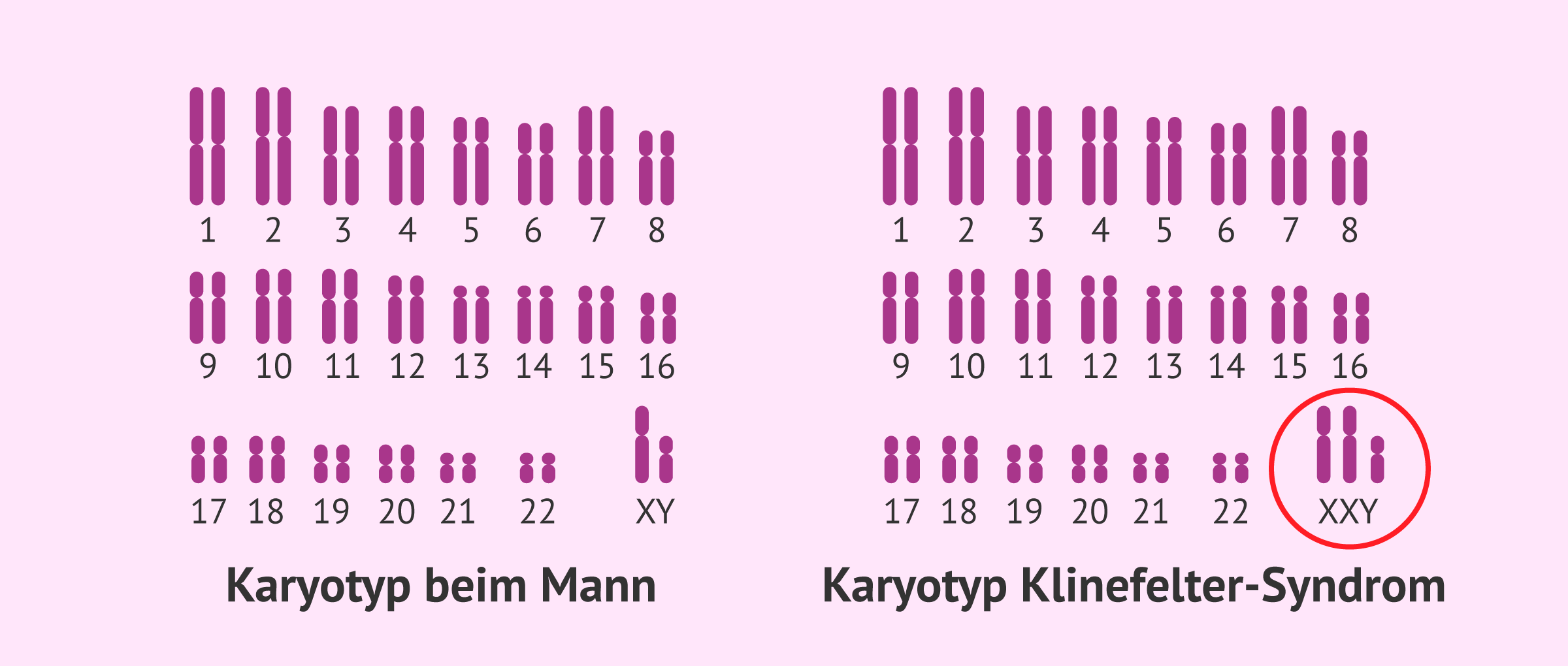 Normaler Karyotyp und Karyotyp bei Klinefelter-Syndrom