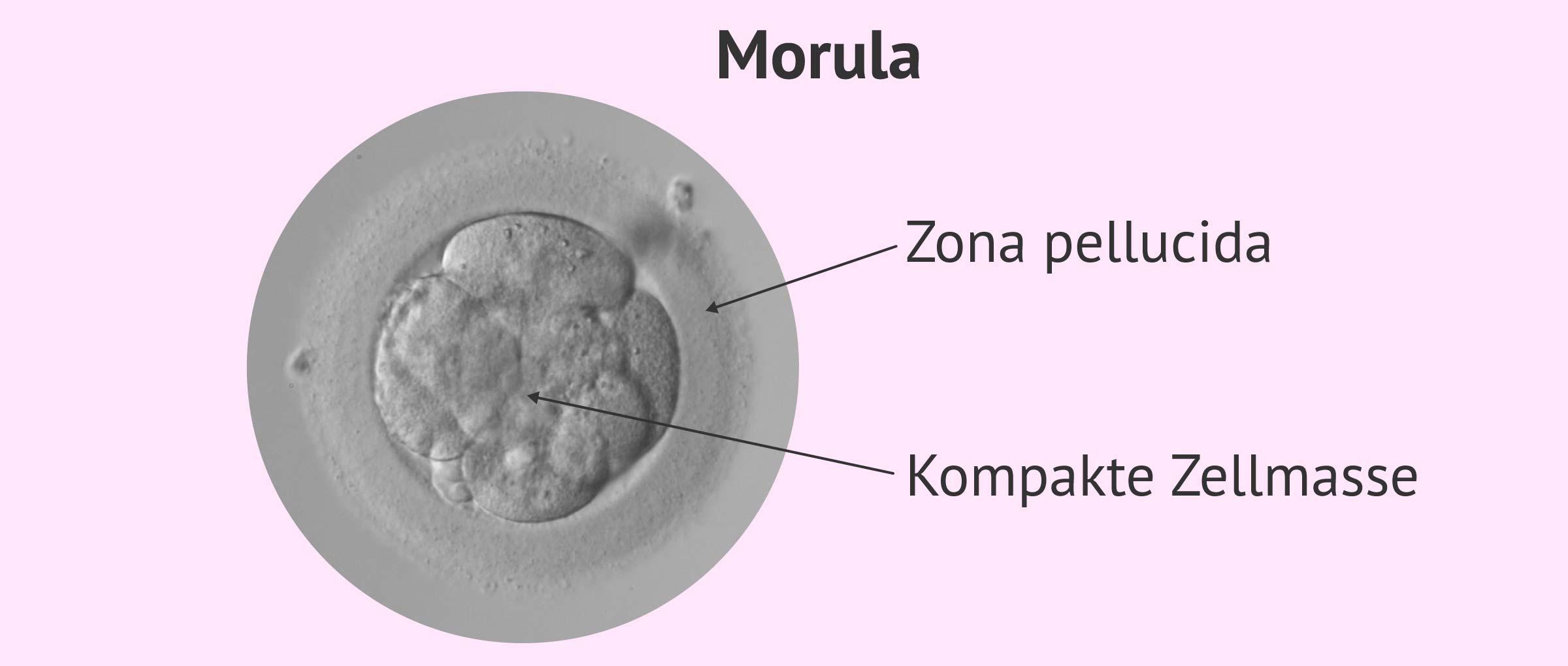 Struktur einer verdichteten Morula