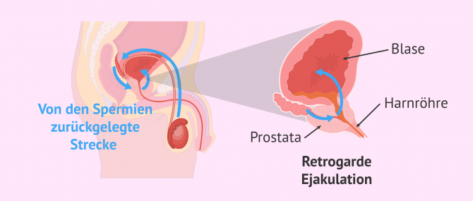 Imagen: Prozess bei retrogarder Ejakulation