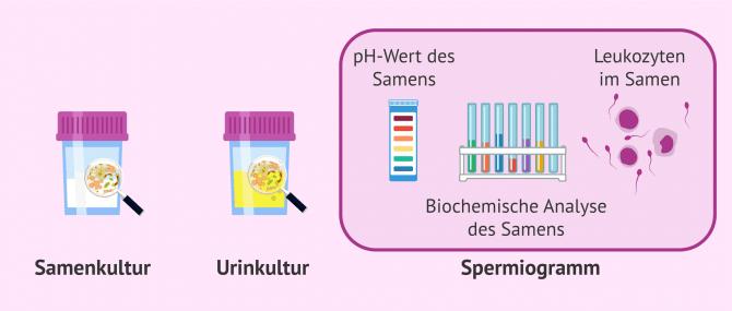 Imagen: Tests zur Diagnose von Sameninfektionen