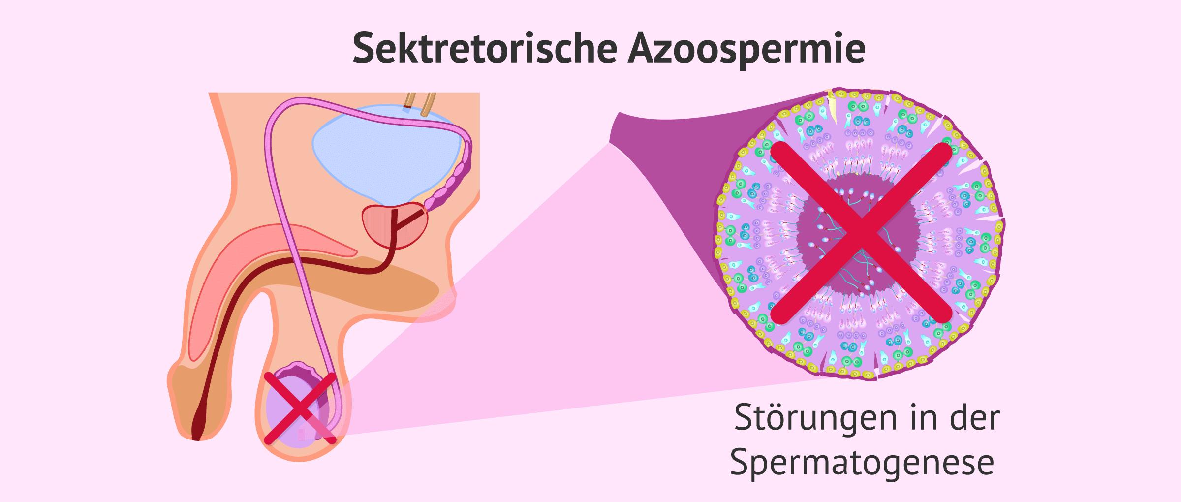 Faktoren die auf die Spermienproduktion einwirken