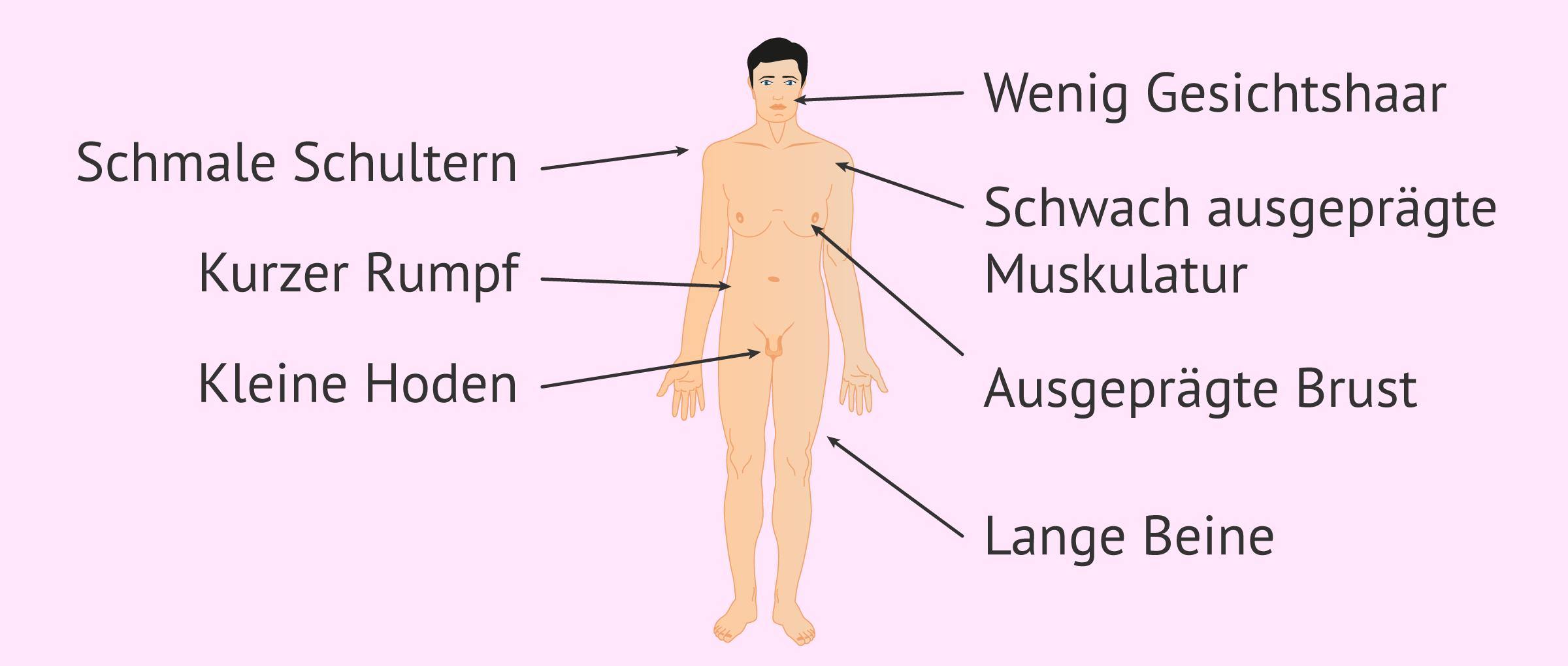 Körperliche Merkmale des Klinefelter-Syndroms
