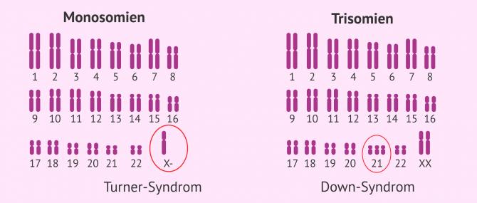 Imagen: Monosomie Trisomie