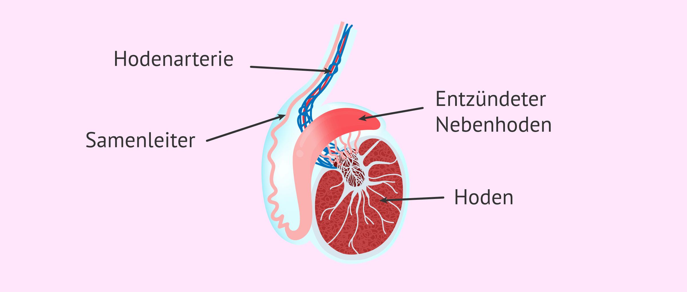 Nebenhodenentzündungen