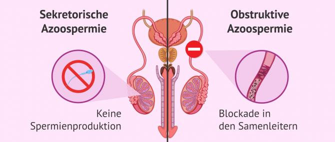 Imagen: Unterschied zwischen Typen von Azoospermie