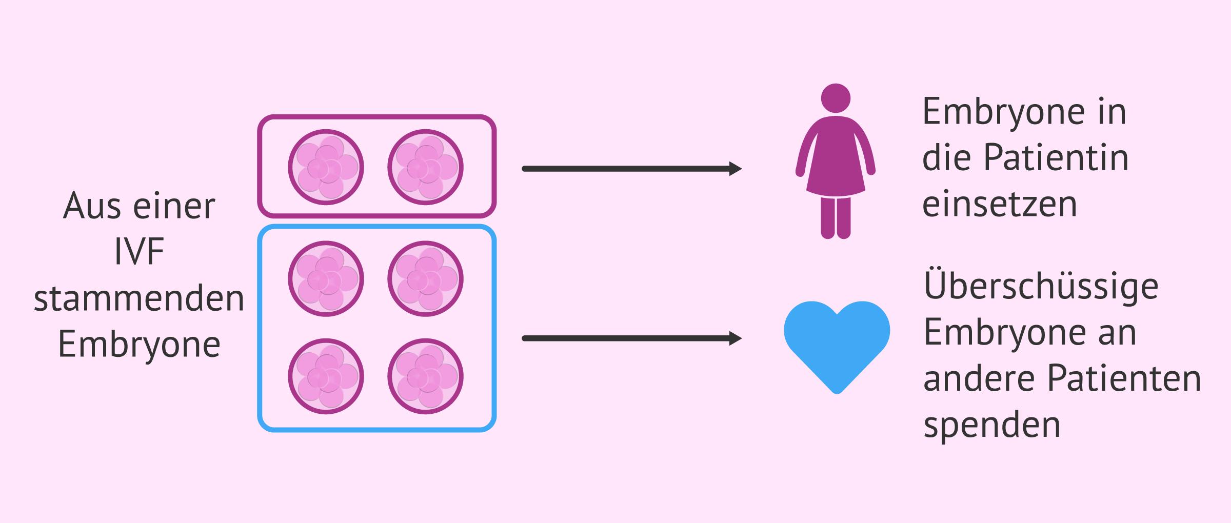 Überschüssige Embryone aus einer IVF spenden
