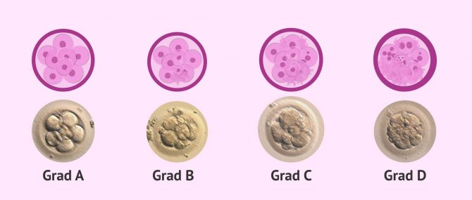 Imagen: Einteilung von Embryonen nach Qualität