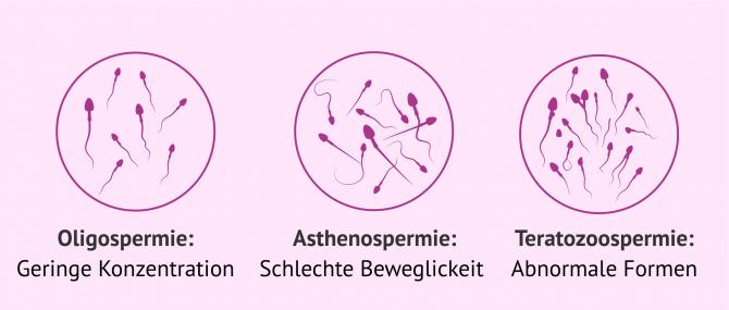Imagen: Oligoasthenoteratozoospermie