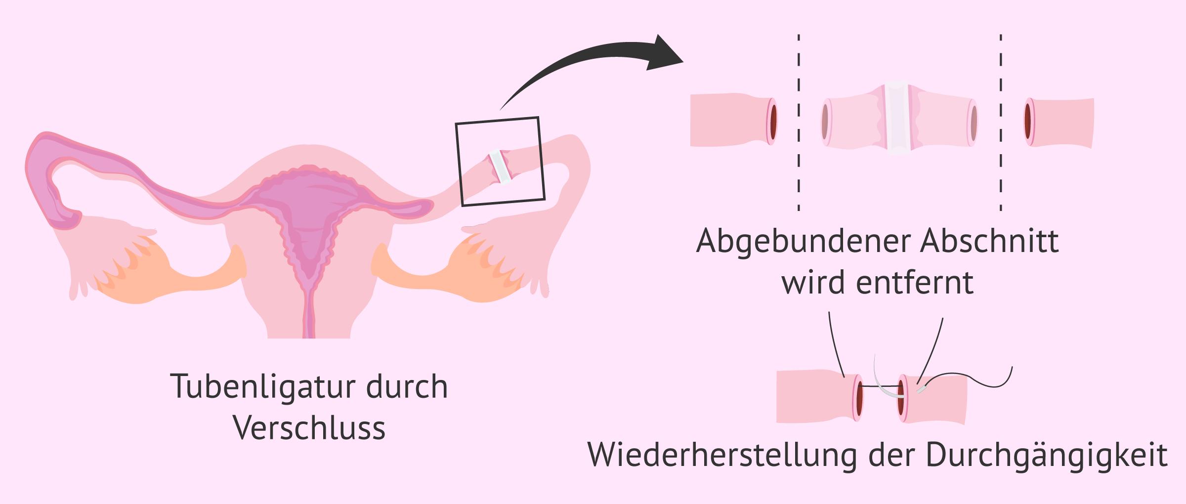 Refertilisierung bei Tubenligadur durch Verschluss