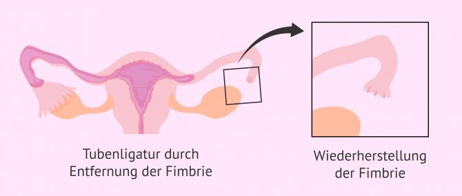 Imagen: Umkehrung der Tubenligatur durch Fimbrien-Rekonstruktion