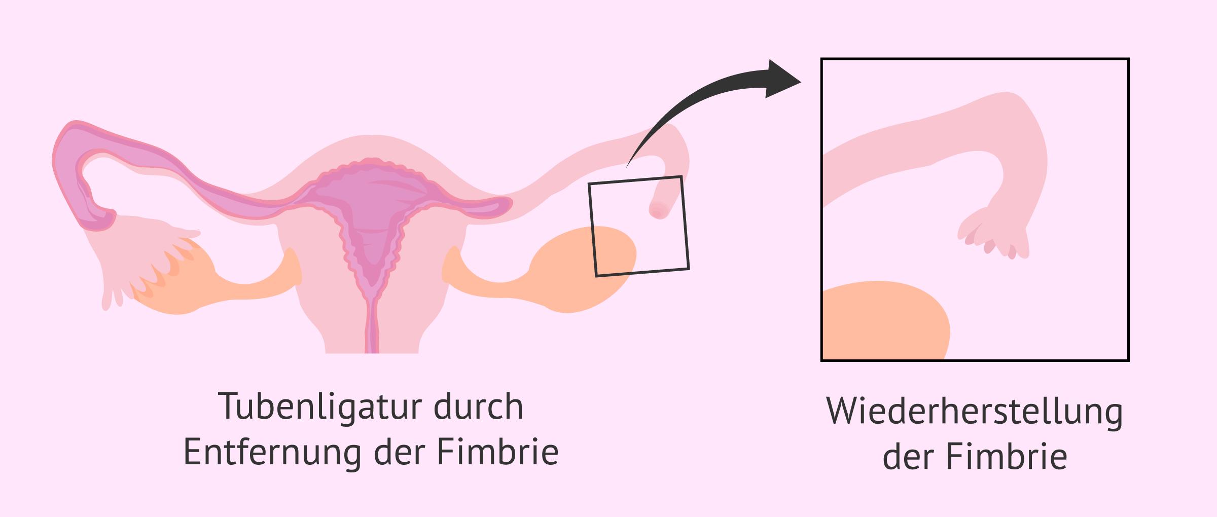 Umkehrung der Tubenligatur durch Fimbrien-Rekonstruktion