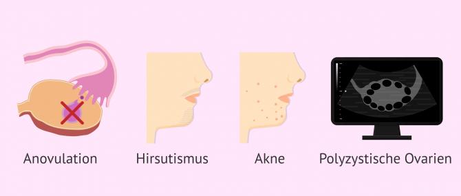 Imagen: Krankheitsbild bei PCO-Syndrom