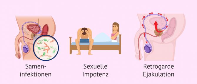 Imagen: Ursachen für post-testikulärem Infertilitätsfaktor