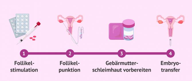 Imagen: Phasen einer IVF bis zum Embryotransfer