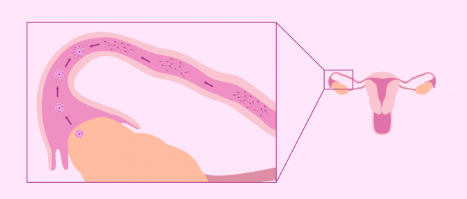 Imagen: Natürliche Befruchtung in den Eileitern