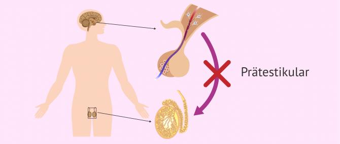 Imagen: Prätestikuläre Ursachen einer Azoospermie