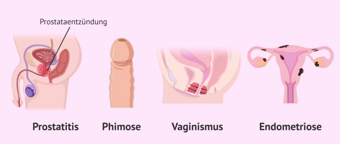 Imagen: Dispaurenie schmerzhafter Geschlechtsverkehr