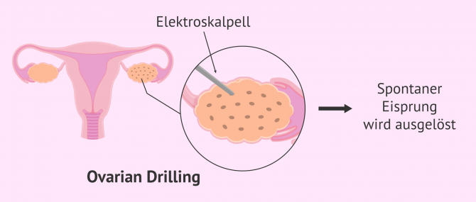 Imagen: Ovarian Drilling bei PCO