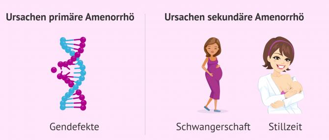 Imagen: Primäre und sekundäre Ursachen der Amenorrhö