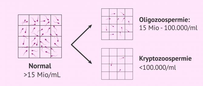 Imagen: Normale, oligozoospermische und kryptozoospermische Samenprobe