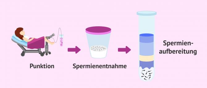 Imagen: Aufbereitung der Samenprobe
