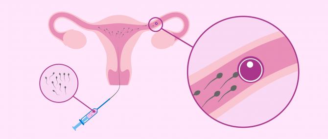 Imagen: Befruchtungsprozess in einer künstlichen Befruchtung