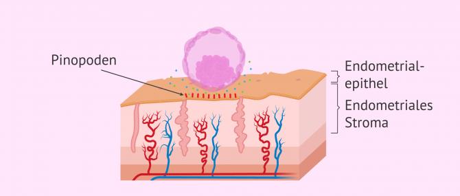 Imagen: Embryoeinnistung: Apposition