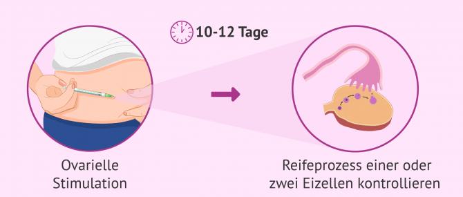 Imagen: Stimulationsbehandlung: das Heranreifen der Eizellen kontrollieren