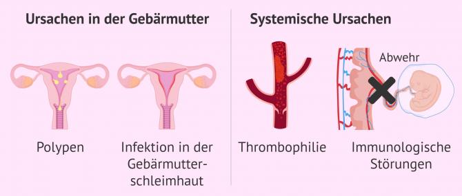 Imagen: Gebärmutterfaktor und systemische Ursachen bei Einnistungsversagen