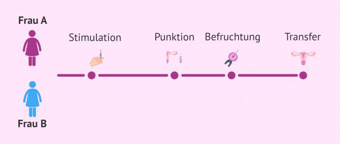 Imagen: IVF für Frauenpaare