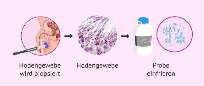 Imagen: Wie wird Hodengewebe eingefroren?
