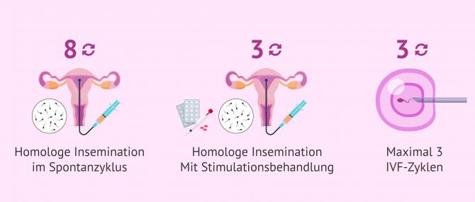 Imagen: Leistungen der Krankenkasse bei Kinderwunschbehandlungen