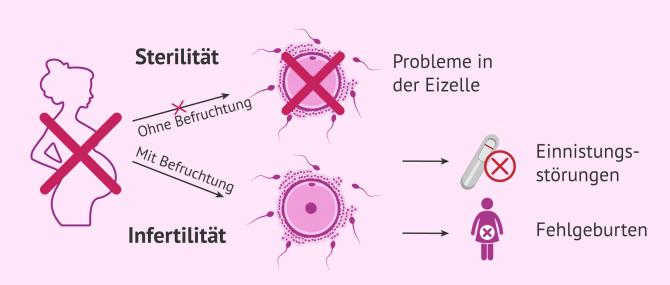 Imagen: Unterschiede zwischen Infertilität und Sterilität bei Frauen