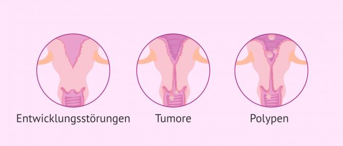 Imagen: Ursachen bei Sterilität durch den Zervixfaktor