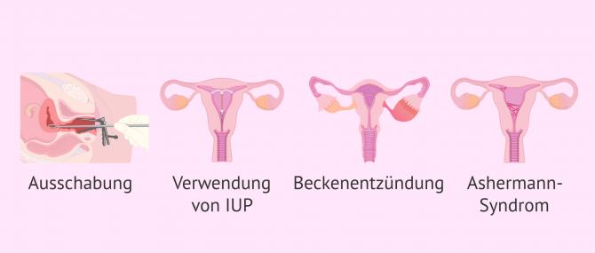 Imagen: Hypomenorrhoe