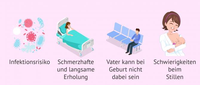 Imagen: Nachteile Kaiserschnitt