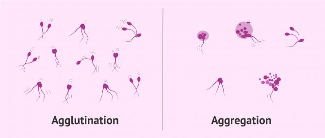 Imagen: Unterschied zwischen Agglutination und Aggregation der Spermien