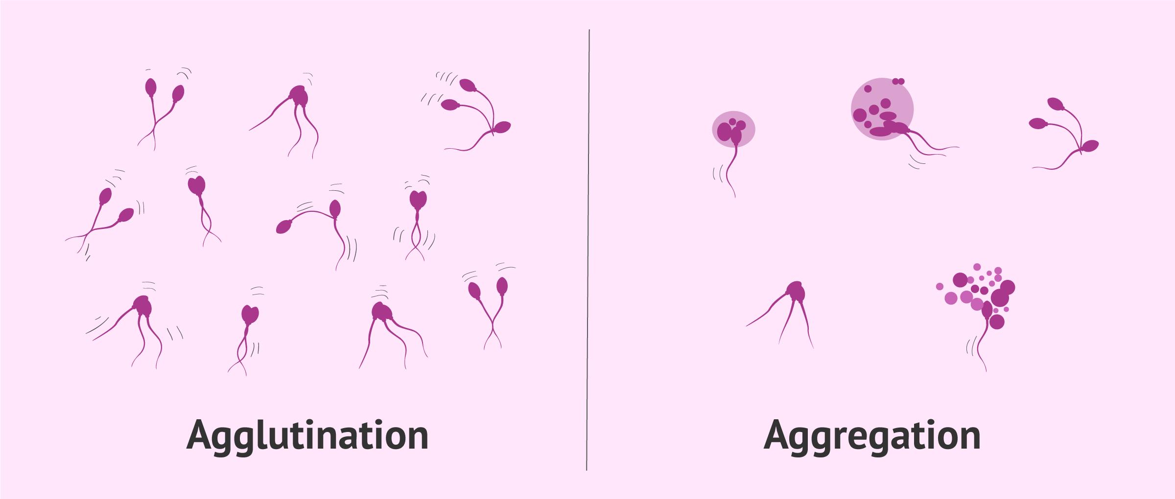 Unterschied zwischen Agglutination und Aggregation der Spermien