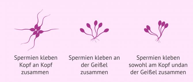 Imagen: Zusammensetzungen bei Agglutination der Spermien
