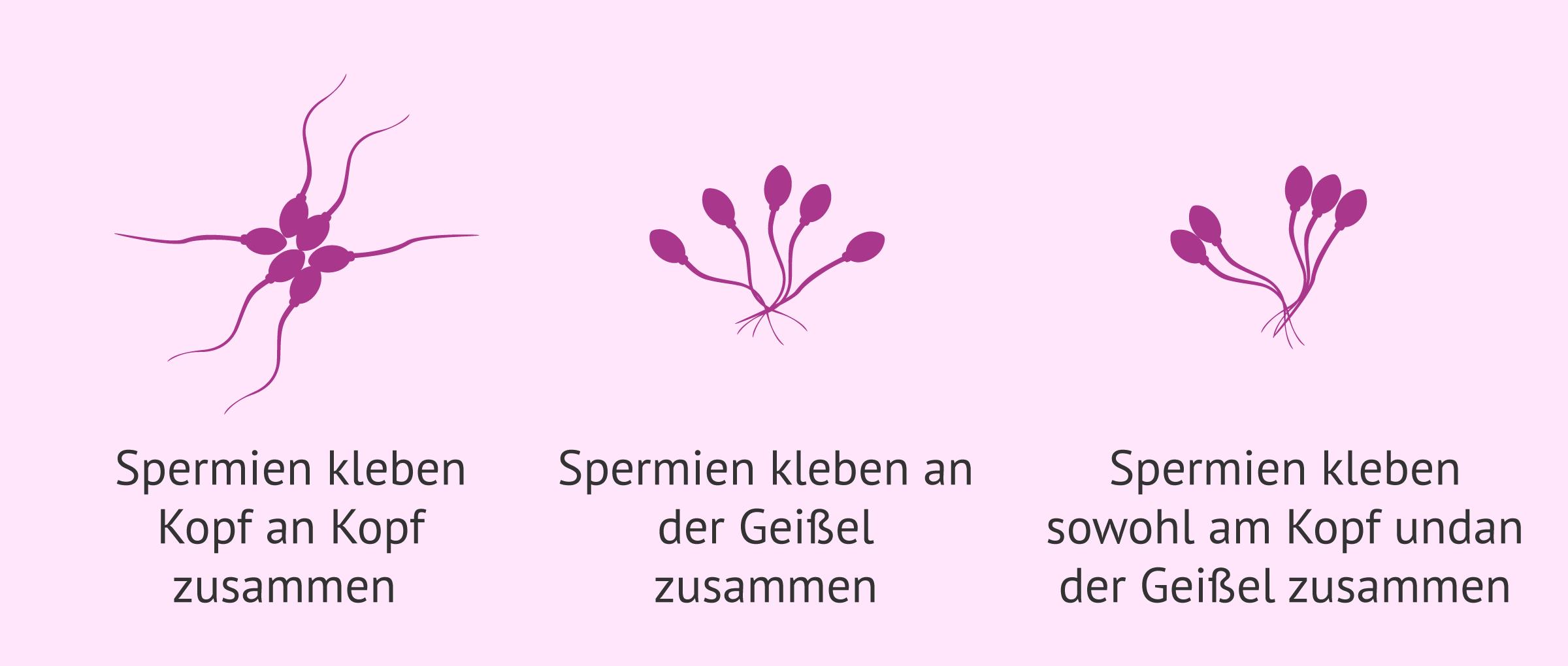 Zusammensetzungen bei Agglutination der Spermien