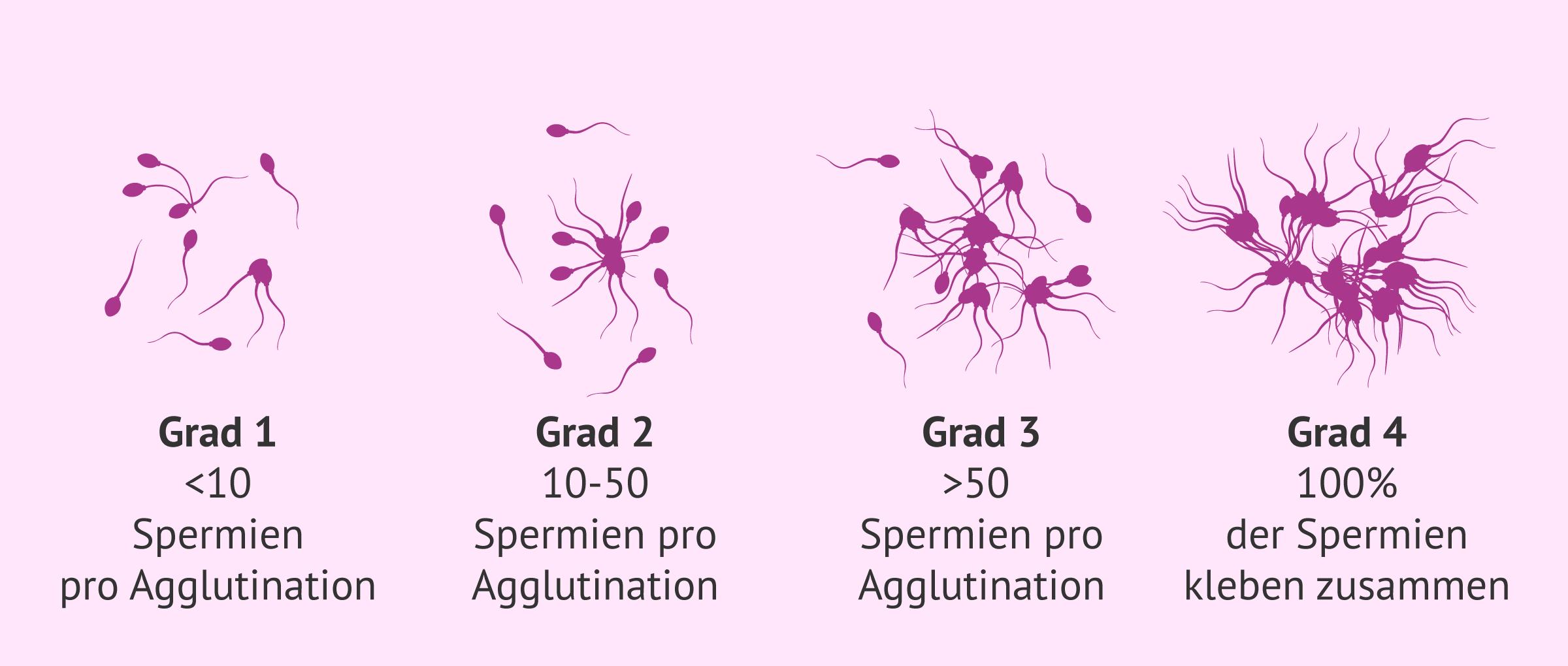 Agglutination der Spermien: Schweregrade