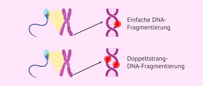 Imagen: Fragmentierung der Spermien-DNA
