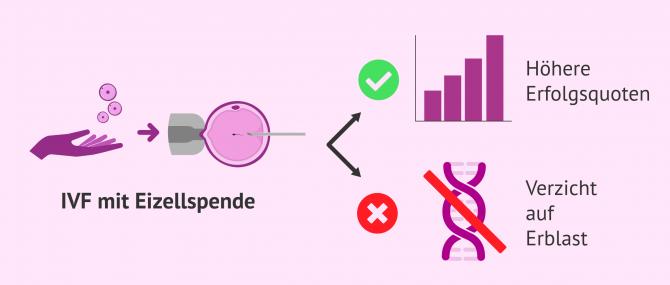 Imagen: Vor- und Nachteile einer IVF mit Eizellspende