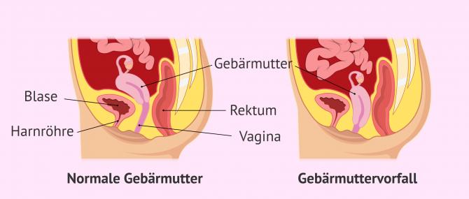 Imagen: Vergleich zwischen einer normalen Gebärmutter und einer vorgefallenen Gebärmutter