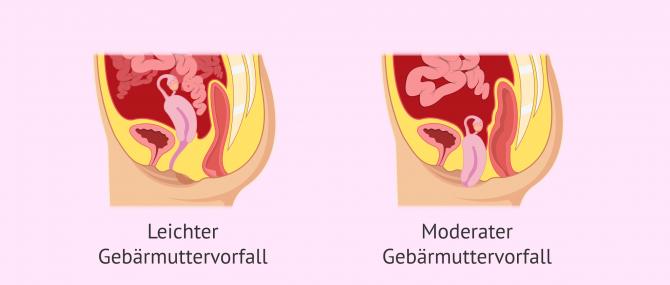Imagen: Arten von Gebärmuttervorfall