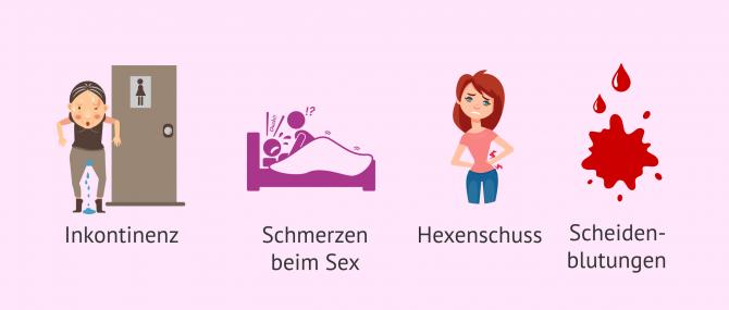 Imagen: Klinische Manifestationen des Uterusprolapses