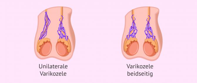 Imagen: Unilaterale und bilaterale Varikozele